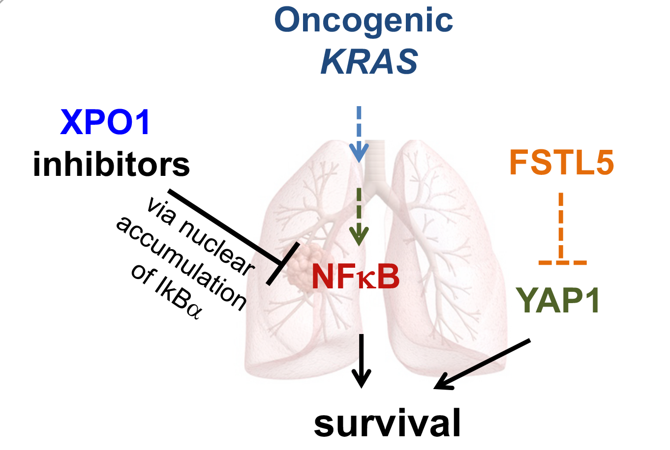 Pathway Illustrating XPO1 inhibitor on the KRAS NF-kappa B pathway in Lung Cancer