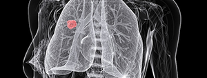 3D image of non-small cell lung tumor within a body