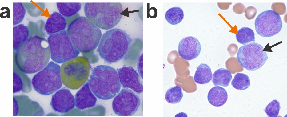 Morphology of cells from two patients with MPAL