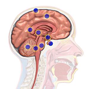Brain Cancer Regions
