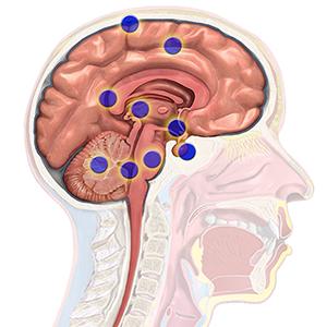 Brain cancer regions.