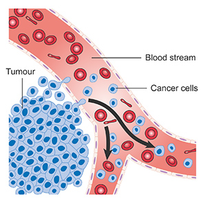 Diagram showing cancer cells spreading into the blood stream CRUK 448