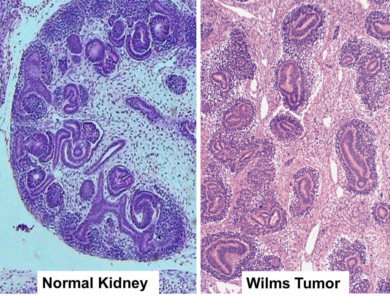 Discovery Of Novel Mutations In A Subtype Of Wilms Tumor Reveals