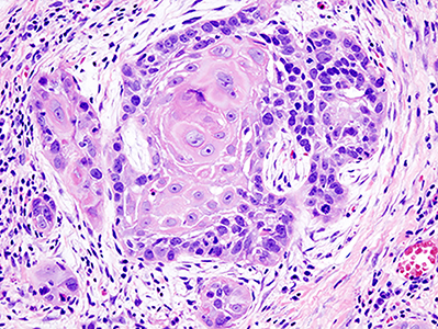 Histopathologic image illustrating well differentiated squamous cell carcinoma in the excisional biopsy specimen. Hematoxylin-eosin stain.