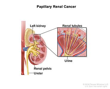 Papillary Renal Cancer