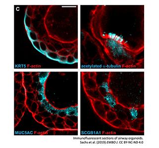 Immunofluorescent sections of airway organoids.