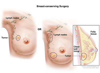 Surgery, Breast-Conserving, Female