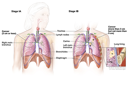Lung Cancer, Non-Small Cell, Stage I