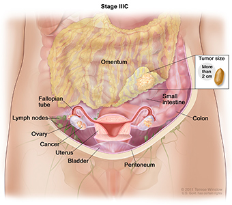 Ovarian Cancer Stage IIIC