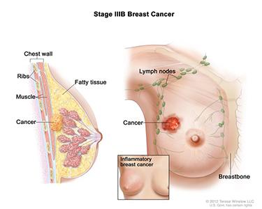 Image of Breast Cancer Stage IIIB