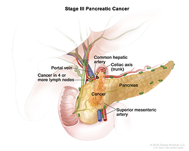 Pancreatic Cancer Stage 3