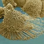 SEM of apoptotic HeLa Cells