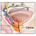 Prostate Cancer Stage IIIA