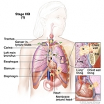 Lung Cancer, Non-Small Cell, Stage IIIB