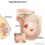 Image of 	Breast Cancer Stage IIIB