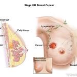 Breast Cancer Stage IIIB